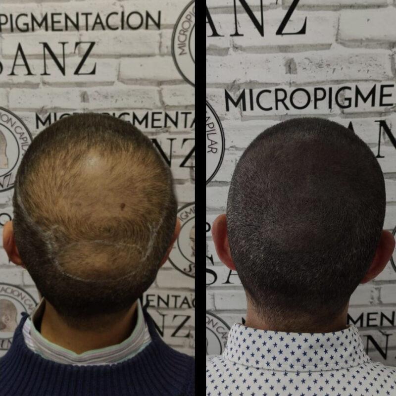 tratamiento-micropigmentacion-01