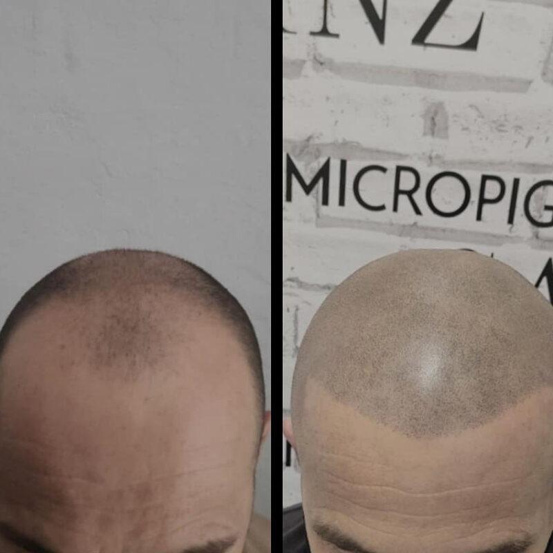 tratamiento-micropigmentacion-02