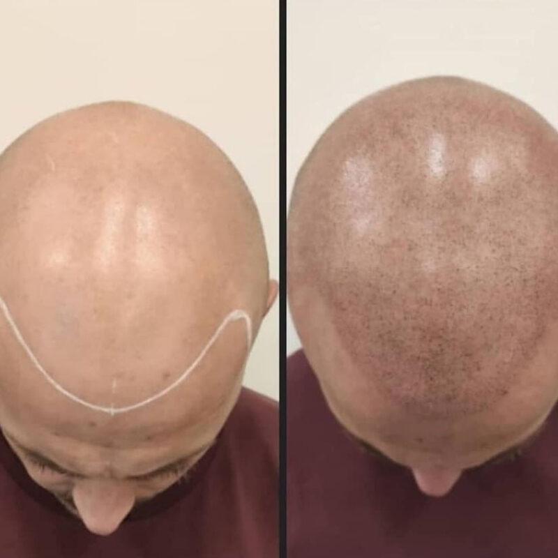 tratamiento-micropigmentacion-03