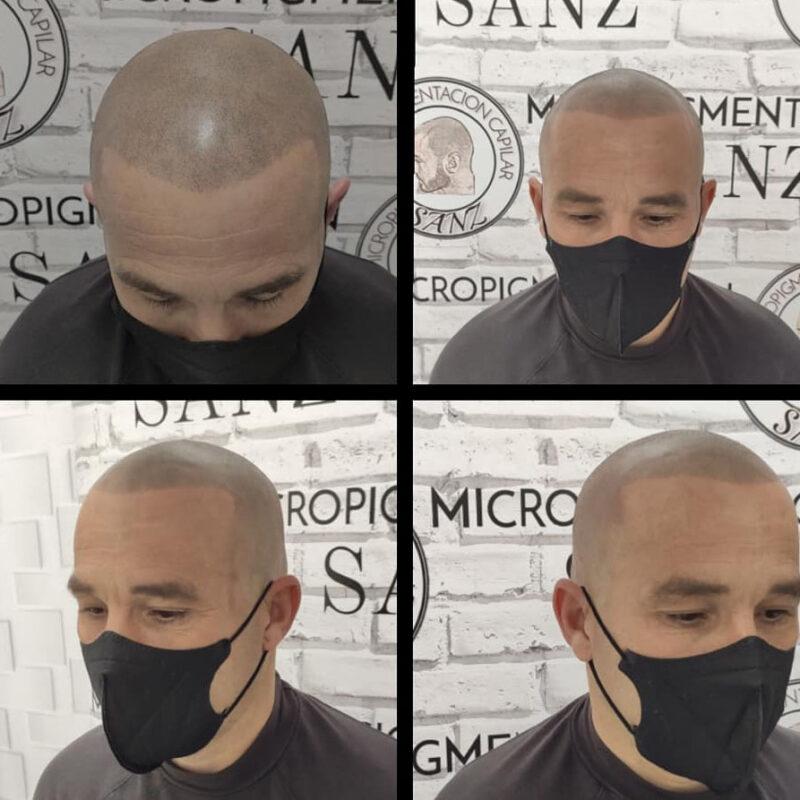 tratamiento-micropigmentacion-05