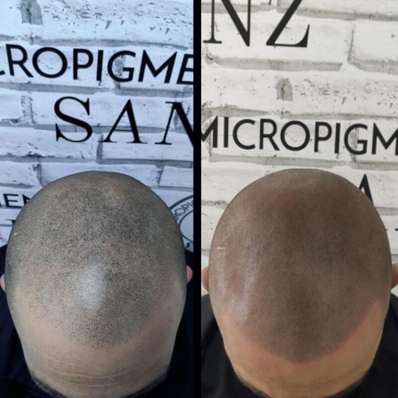 tratamiento-micropigmentacion-06