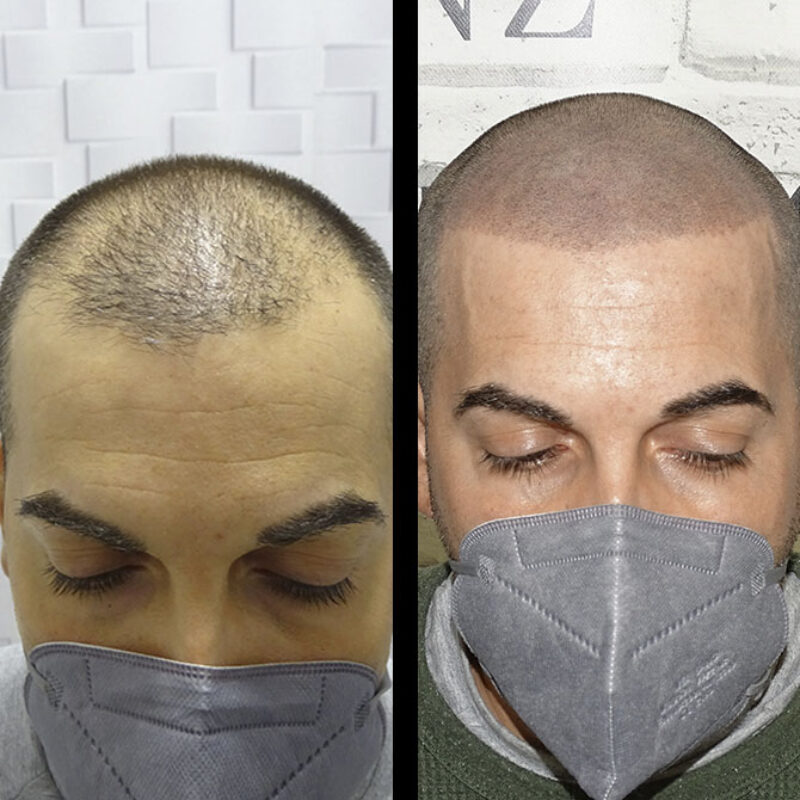 tratamiento-micropigmentacion-09